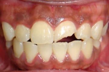Composite Dental Bonding
