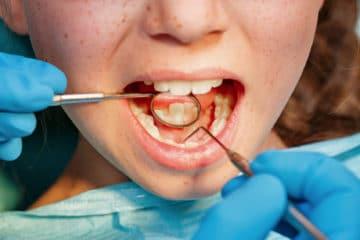 Professional Teeth Cleanings