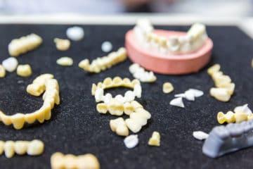 Restorative Dental Procedures